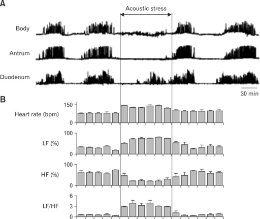 Effects of acoustic stress on gastrointestinal migrating motor complex (MMC) (A) and heart rate viability (B) in conscious dogs. Acoustic stress almost completely abolishes gastric MMC (body and antrum) without affecting intestinal MMC (duodenum). During acoustic stress loading, heart rate and sympathetic tone (low frequency component; LF) are increased, while parasympathetic tone (high frequency component; HF) is reduced. As a result, the ratio between sympathetic tone and parasympathetic tone (LF/HF) is increaed by acoustic stress. Adapted from Taniguchi et al.83