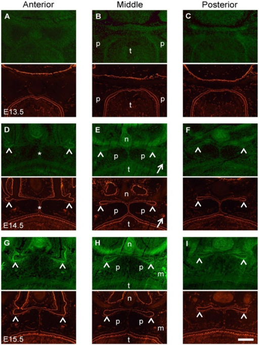 Double labeling for gelatinolytic activity and laminin in the palatal region of the mouse embryo.Frontal cryosections of E13.5 (A–C), E14.5 (D–F), and E15.5 (G–I) wild type mouse heads were subjected to DQ-gelatin zymography (green panels), followed by immunofluorescence labeling for laminin-111 on the same section (red panels). The images show representative sections from the anterior (A, D, G), the middle (B, E, H), and the posterior (C, F, I) level of the palate. No site with significant gelatinolytic activity, as manifested by increased fluorescence, is detected at E13.5 prior to palatal shelf elevation. At E14.5, gelatinolytic activity is evident in the nasal cartilage and in the main palatal arteries (arrows). In addition, signs of gelatinolysis are visible at the midline epithelial seam (asterisks), whereas prominent gelatinolytic activity is detected around the folds of the elevated palatal shelves, where the nasopharynx will form (arrowheads). A similar pattern of gelatinolysis is observed at E15.5, although activity is increased compared to E14.5. Furthermore, prominent activity was evident for maxillary bone. p, palatal shelf; t, tongue; n, nasal cartilage; m, maxillary bone. Bar, 200 μm.