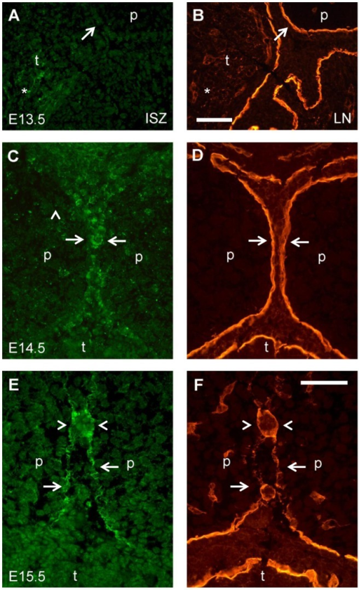 Close-up images of double labeling for gelatinolytic activity and laminin around medial edge epithelial cells of palatal shelves.Frontal cryosections (middle anteroposterior level) from E13.5 (A, B), E14.5 (C, D), and E15.5 (E, F) wild type mouse heads were subjected to DQ-gelatin zymography, followed by immunofluorescence labeling for laminin on the same section. (A) In situ zymography and (B) laminin labeling, respectively, in the distal-medial region of a E13.5 palatal shelf, where epithelial fusion will occur after shelf elevation. No sign of activity was detected at that site (arrows), while gelatinolysis was evident in the tongue mesenchyme (asterisks). (C) In situ zymography and (D) laminin labeling, respectively, immediately prior to midline fusion of the palatal shelves at E14.5. Note weak gelatinolytic activity at the site where epithelial fusion will occur (arrows). (E) In situ zymography and (F) laminin labeling, respectively, during midline fusion of the palate at E15.5. Prominent gelatinolytic activity is evident at sites of midline epithelial fusion (arrows), and at the epithelial remnants of the palatal shelves at the midline (arrowheads). p, palatal shelf; t, tongue. Bars, 50 μm.