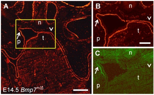 Double labeling for gelatinolytic activity and laminin in the palatal region of a Bmp7+/Δ mouse embryo.A frontal cryosection of a E14.5 Bmp7+/Δ mouse head was subjected to DQ-gelatin zymography, followed by immunofluorescence labeling for laminin-111 on the same section. The asymmetric and delayed shelf elevation process provides the possibility for comparing opposing palatal shelves that are at different stages of elevation. (A) Labeling for laminin indicating the region (yellow box) that is shown at higher magnification in (B) (laminin staining) and (C) (in situ zymography), respectively. Gelatinolytic activity colocalizes with the basement membrane of the epithelial fold that is created in the process of elevation of the left palatal shelf (arrows). No sign of gelatinolytic activity is detected in the corresponding region of the opposite shelf where elevation has not yet started (arrowheads). n, nasal cartilage; p, palatal shelf; t, tongue. Bar, 200 μm in A, 100 μm in B and C.