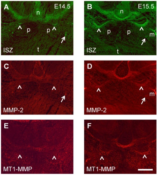 Double labeling for gelatinolytic activity and MMP-2 and MT1-MMP in the palatal region of the mouse embryo.Frontal cryosections of E14.5 (A, C, E) and E15.5 (B, D, F) wild type mouse heads were subjected to DQ-gelatin zymography, followed by immunofluorescence labeling for MMPs on the same section. Serial sections were used; only one zymography image (double labeling for MMP-2) per stage is shown (A, B). Note that despite of differences in distribution, both MMP-2 (C, D) and MT1-MMP (E, F) substantially overlap with gelatinolytic activity, most notably in developing cartilage and bone but also around the expanding nasopharyngeal cavity (arrowheads). For more details, see Results. n, nasal cartilage; p, palatal shelf; t, tongue; m, maxillary bone. Bar, 200 μm.