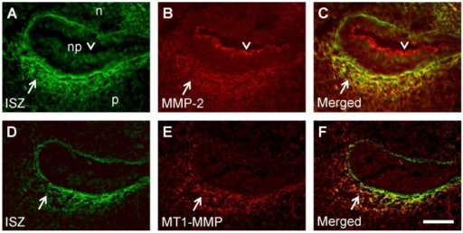 Codistribution of MMP immunostaining with gelatinolytic activity in and around the basement membrane of the palatal fold.Frontal cryosections of E15.5 wild type mouse heads were subjected to DQ-gelatin zymography (A, D), followed by immunofluorescence labeling for MMP-2 (B) or MT1-MMP (E) on the same section. Merged images are shown in C and F. Note colocalization of MMPs with gelatinolytic activity in and around the basement membrane of the epithelial fold (arrows) that is formed above the palatal shelf after its elevation. MMP-2 expression is also evident at the luminal surface of the epithelium where there is no gelatinolysis (arrowheads). For more details, see Results. p, palatal shelf; n, nasal floor; np, nasopharynx. Bar, 50 μm.
