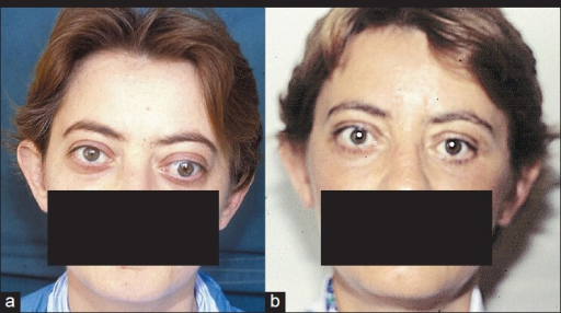 Patient with exophthalmos of 28 mm, strabismus, diplopia and eyelid deformities, before (a) and 3 months after the operation (b), without diplopia