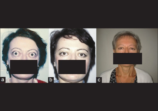 Patient with exophthalmos of 30 mm and eyelid retraction, before (a), after 2 years (b) and after 23 years (c), without diplopia