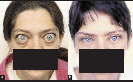 Patient after thyroidectomy with exophthalmos of 32 mm and with eyelid retraction and deformities [changes on the eyes are worsened after thyroidectomy] before (a) and 3 months after operation (b), without diplopia
