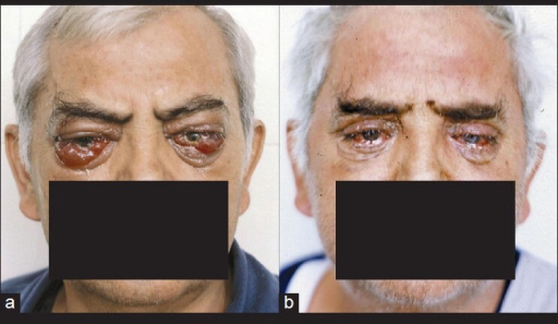 Malignant TO with bilateral blindness (a) and 7 days after operation (b). The vision is improved significantly because of recovery of the reversible change of optic nerve and cornea
