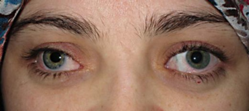 Patient's appearance after 1 year. She is wearing a prosthesis in the right eye with outward deviation of the left globe.