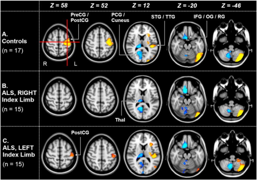Patterns of gray matter asymmetry in ALS and control subjects. Selected axial plane reconstructions from 17 right-handed controls (Row A), 15 ALS subjects with a right-sided index limb (Row B), and 15 ALS subjects with a left-sided index limb (Row C). Significant regions of GM asymmetry (p ≤ 0.01, TFCE-corrected) are shown. Regions coloured in orange-yellow represent leftward asymmetry (i.e. higher GM density in the left hemisphere), whereas blue clusters signify rightward asymmetry. In control subjects, there is a cluster of leftward GM asymmetry which incorporates the centre-of-gravity of the dominant thenar representation area (shown by the intersection of the two red lines). PreCG = precentral gyrus; PostCG = postcentral gyrus; PCG = posterior cingulate gyrus; STG = superior temporal gyrus; TTG = transverse temporal gyrus; IFG = inferior frontal gyrus; OG = orbital gyrus; RG = rectal gyrus; Thal = thalamus.