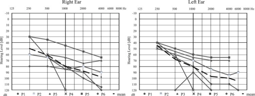 Hearing thresholds recorded by PTA in Slovak homozygous subjects.P1, P2, P3, P5, P6—positive probands and P4—a family member. Dashed line represents the calculated mean audiogram.