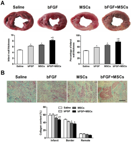 Combined administration of basic fibroblast growth factor (bFGF) and mesenchymal stem cells (MSCs) increases infarct wall thickness and reduces myocardial fibrosis. (A) Post-mortem morphometry revealed midmural scars in the left ventricular wall. Coronary venous infusion of bFGFs+MSCs increased infarct wall thickness compared to other groups. The percentage of infarct wall thickness to septal wall thickness was greatest in the bFGF+MSCs group. (B) Masson's trichrome staining showed decreased collagen content in the MSCs and bFGF+MSCs groups both in the infarct and border zones. Scale bar: 100μm. Histograms represent mean±SEM. A: *p<0.05 vs saline; †p<0.05 vs bFGF and MSCs groups. B: *p<0.05 vs saline; †p<0.05 vs bFGF.