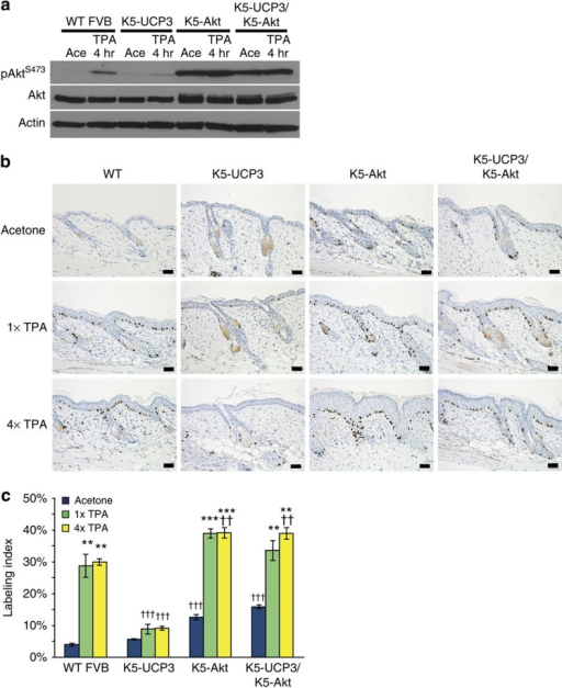 Overexpression of Akt rescues proliferation in K5-UCP3 epidermis.(a) Immunoblot for Akt phosphorylation at Ser 473 in wild-type FVB, K5-UCP3, K5-Akt and bitransgenic K5-UCP3/K5-Akt epidermal lysates, 4 h following topical treatment with 2.5 μg TPA or acetone (vehicle control). Immunoblotting for β-Actin was used to confirm equal loading. (b) Immunohistochemistry for BrdU labelled cells in wild-type FVB/N, K5-UCP3, K5-Akt, and bitransgenic K5-UCP3/K5-Akt epidermis following topical treatment with single (1 × ) or multiple (4 × ) treatments with 2.5 μg TPA or acetone. Scale bars, 50 μ. (c) Quantification of BrdU labelled cells in the basal layer of the interfollicular epidermis (IFE). More than 100 cells from five randomly selected skin sections (total >500 cells) were counted from each of n=3 mice per genotype in each treatment group. Error bars represent means+/−s.e.m. (n=3 animals per group). *Indicates significantly different from acetone control, same genotype (**P<0.01, ***P<0.0001, one way analysis of variance (ANOVA) followed by Dunnett's post hoc analysis), † indicates significantly different from wild-type FVB/N, same treatment (††† P<0.0001, one way ANOVA followed by Dunnett's post hoc analysis).