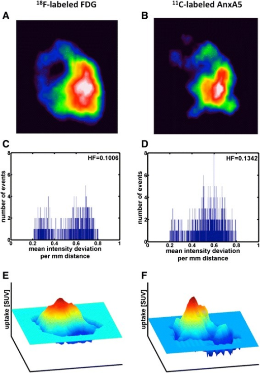 PET transaxial images (a, b, the colour scales are the same), histograms of the heterogeneity contributions (the mean intensity deviation per distance calculated according to Eq. 2) (c, d) and surface plots (e, f) of the uptake of [18F]FDG and 11C-labelled AnxA5 in a FaDu xenograft. The imaging was performed in the same animal >2 h apart on the same day. In e and f, the X- and Y-axes represent spatial dimensions and the Z-axis is the tracer uptake in SUVmean