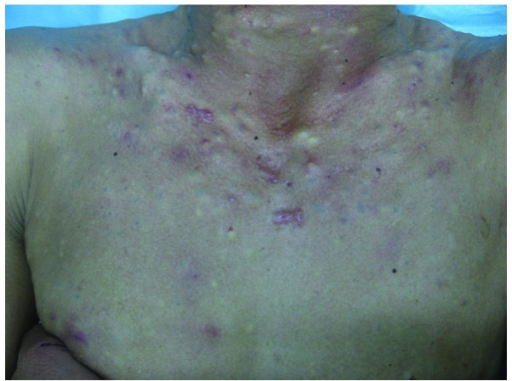 Steatocystoma multiplex lesions located on the neck and chest of the proband.