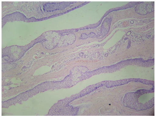 Hematoxylin and eosin stained histological section of a steatoma from the proband individual diagnosed with steatocystoma multiplex. A steatocystoma with sebaceous gland lobules in the cyst wall are present (magnification, ×40).