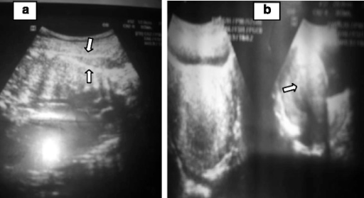 Ultrasound images of abdominal pregnancy. a The fetal spine (lower arrow) can be seen just under abdominal wall echo (upper arrow) without intervening myometrial tissue. b An empty uterus
