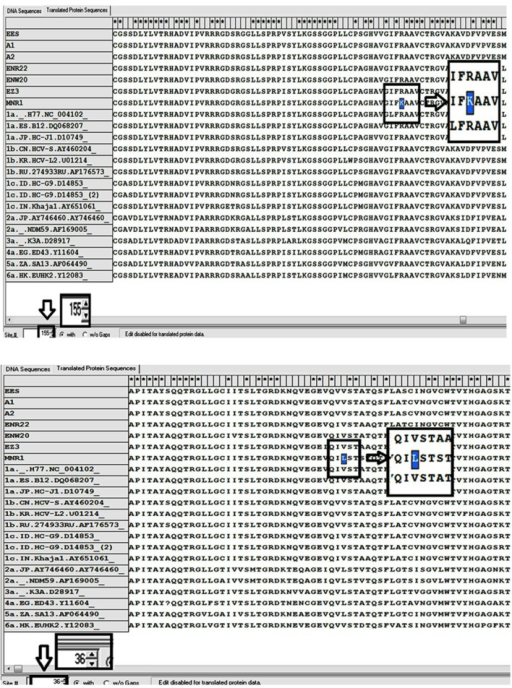 Detection of Critical Mutations in One Patient (Nominated as MNR1) During Screening by Comparison With the Reference SequencesOn the top, R155K mutation (replacing of lysine by arginine in the position 155 aa) and on the below, V36L mutation (valine to leucine substitution in the position 36 aa) were highlighted in square after sequence alignment by MEGA4 software.