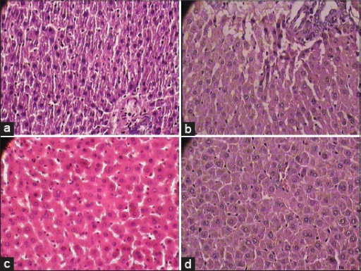 (a) Normal cytoarchitecture of liver in normal control group (1 × 400 magnification), (b) Photomicrographs of representative section of Liver. Macro and micro fatty changes, cell infiltration in almost all the sections streptozotocin control group (1 × 400 magnification) (c) Shadguna Balijarita Makaradhwaja treated rats shows almost normal cytoarchitecture of liver in comparison with streptozotocin control group diabetic rats (1 × 400 magnification), (d) Glibenclamide treated rat showed almost normal cytoarchitecture of liver sections in comparison with streptozotocin control group diabetic rats (1 × 400 magnification)