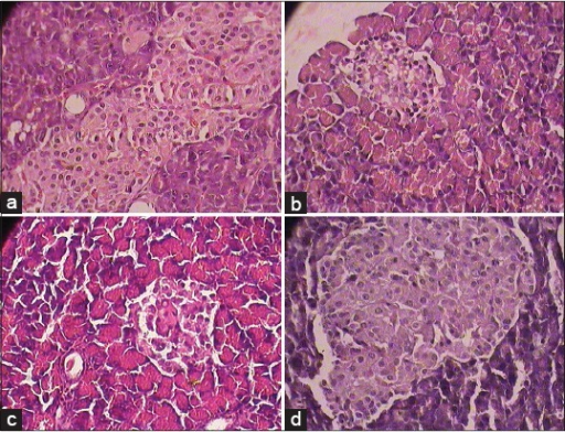 (a) Normal cytoarchitecture in normal control group, (b) Photomicrographs of representative section of Pancreas. Marked degeneration of Islets of Langerhans and degranulation of streptozotocin control treated diabetic rats (1 × 400 magnification), (c) SBM treated rats shows comparatively less degeneration of Islets of Langerhans with intact granules in comparison with streptozotocin control group diabetic rats (1 × 400 magnification), and (d) Glibenclamide treated rat showed normal cyto-architecture with intact granules in comparison with streptozotocin control group diabetic rats (1 × 400 magnification)