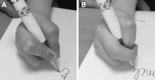 Patient filmed while writing on request (a) and on hidden camera (b). This patient used the pinch normally on request and a lateral pinch on hidden camera
