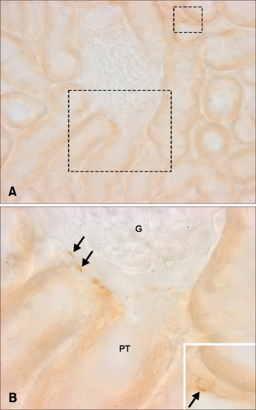 Light micrographs illustrating OPN immunostaining in the cortex (A). Occasionally, OPN expression was observed in Bowman's capsules (B, arrows) and distal tubules (inset, arrow). Rectangles mark areas magnified. G, glomerulus; PT, proximal tubule.