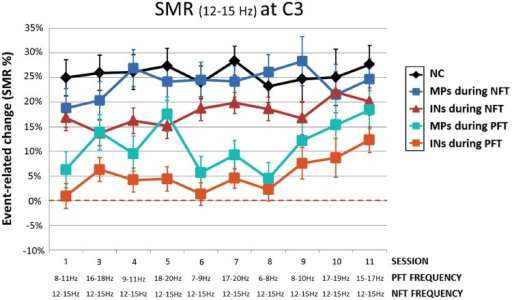 Effects of NFT/PFT training on SMR band power during training. Note that as a group all patients [patients with insomnia (INs), misperception insomniacs (MPs)] were able to significantly increase power in the SMR frequency band during NFT (as compared to PFT). A group of young healthy neurofeedback controls (NC) is plotted for comparison. Note that the x-axis informs about the rewarded frequency bands for PFT and NFT. Training sessions 2 and 12 are not displayed due to technical problems.