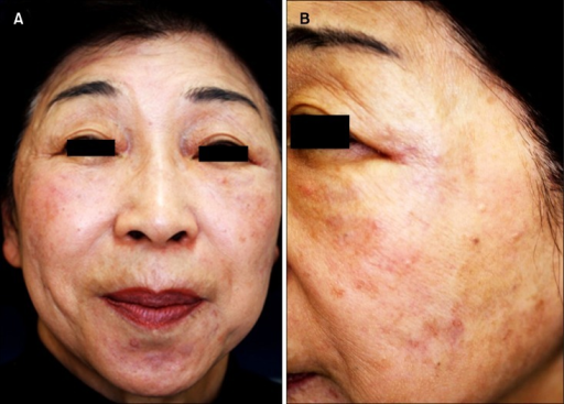 (A) Multiple slightly reddish nodules up to 1 cm in diameter on the cheeks and forehead, around the eyes and mouth. (B) Close view of the left cheek.