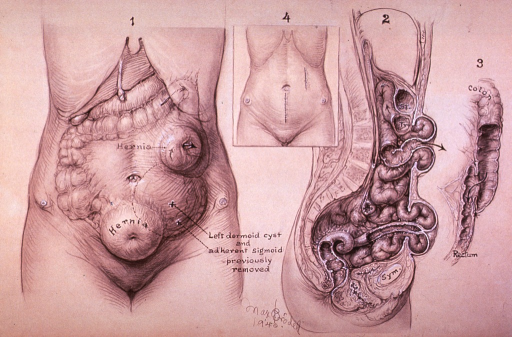 <p>Illustration depicting hernia in a female patient; also indicating location of previously removed left dermoid cyst and adherent sigmoid.</p>