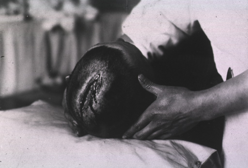 <p>View of a patient's open wound located on top of his head.</p>