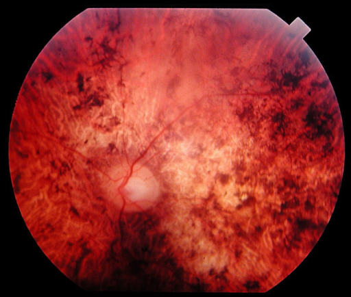 Fundus of a 45 year-old patient with cone rod dystrophy segregating with a loss-of-function mutation (E1087X) in ABCA4. Note the presence of various-shaped pigment deposits in the posterior pole with atrophy of the retina, while the retina appears less damaged in periphery (upper part of the photograph).