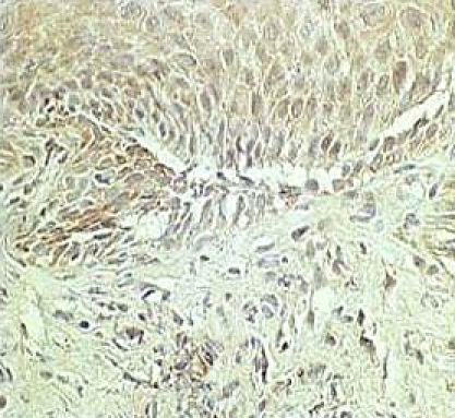 Based on immunohistochemical analysis with anti-IL-8 antisera, IL-8 expression was found in the epithelium of esophageal biopsy specimens. Reprinted with permission [22].
