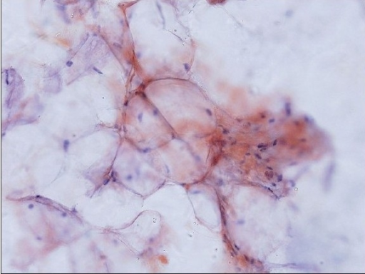 Amyloid on smears: Amyloid appearing as light pink material deposited along the contours of adipocytes (Congo red stain, original magnification × 200)