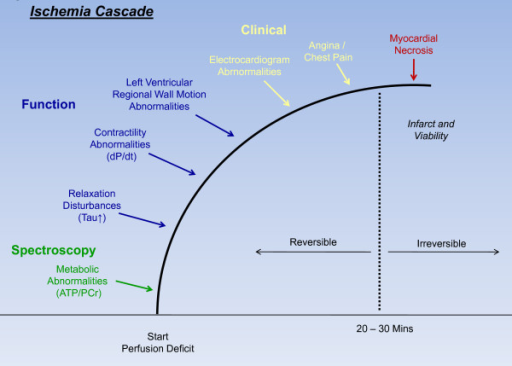Sequence of events after coronary artery occlusion. Ischemic cascade represents the sequence of pathophysiological events following disruption of coronary artery blood flow.