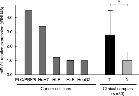 The expression level of miR-21 in five HCC cell lines including PLC/PRF/5, HuH7, HLE, HLF, and HepG2, and clinical samples from 30 patients with advanced HCC. The miR-21 expression was normalised by the average expression in non-tumoural tissues. The expression in tumoural tissue was significantly higher than in non-tumoural tissue (*P<0.05). Data are mean±s.d. T =tumoural tissue; N= non-tumoural tissue.