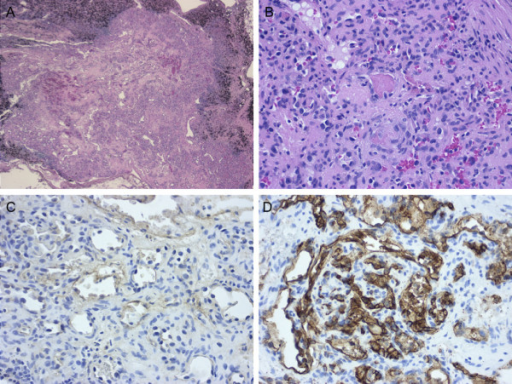 Histological findings of a pulmonary hilar lymph node. A, The lymph node exhibits residual nodal tissue and replacement by a vascular tumor (hematoxylin-eosin staining). B, The lesion is composed of well-developed capillaries. Organizing thrombi were identifiable (hematoxylin-eosin staining). C-D, Endothelial cells were positive for factor VIII and CD34 (C, Factor VIII immunostaining; D, CD34 immunostaining).