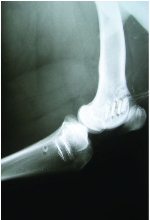 Postoperative radiograph thirty days after implantation showing the six actuators in place (four in the femur, two in the tibia). There are neither signs of periostal or peri-implantar reaction nor signs of infection in neighboring soft tissues.