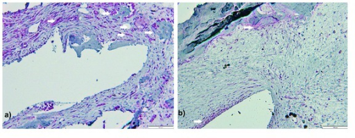 Microphotograph of decalcified sections, osteopontin (white arrows) and PCNA expression. Picture shows Z3 areas of femoral: (a) actuator and (b) static control, suggesting more extensive osteopontin labeling around actuator. Double Fast-Red and DAB immunohistochemistry staining for osteopontin and PCNA, respectively. Scale bar represents 100 μm.