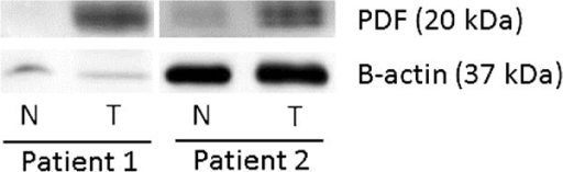 PDF protein expression is elevated in colon tumor tissues. Western blotting was done to determine the expression of PDF in colon cancer tissue samples (T) relative to normal colon tissue (N) from two patients. Elevated PDF levels were found in the colon tumor samples for each patient. A β-actin antibody was used to confirm equal protein loading of the tissue samples for each patient. Two replicate experiments were performed and this image shows one representative experiment.