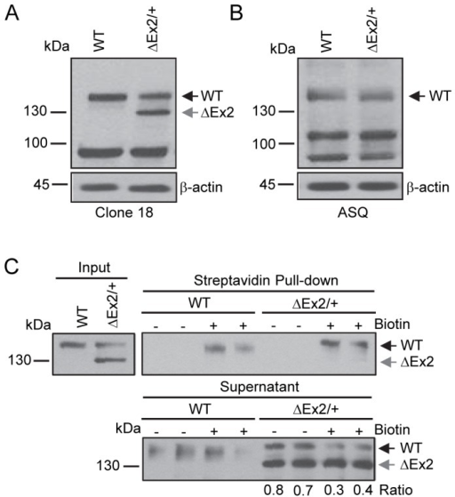 Characterization of the endogenously expressed Bmpr2 mutant product in pulmonary endothelial cells from Bmpr2ΔEx2/+ mice.Studies were performed using conditionally immortalized PECs (ciPECs) isolated from wild type control and Bmpr2ΔEx2/+ mice and replicated at least three times. A, Western blot using the Clone 18 anti-BMPR2 antibody in wild type (WT) and Bmpr2ΔEx2/+ (ΔEx2/+) ciPEC lysates. Both cell lines expressed a 150 kDa wild type Bmpr2 product (WT). Bmpr2ΔEx2/+ ciPECs also expressed a 130 kDa product (ΔEx2). B, Western blot using ASQ anti-BMPR2 antibody. Wild type control and Bmpr2ΔEx2/+ ciPECs expressed 150 kDa WT Bmpr2, but the 130 kDa product was not detected. C, Cell surface expression of Bmpr2 in ciPECs. ciPECs were labeled with membrane impermeable biotin and cell surface expression of Bmpr2 detected in streptavidin pull-down of cell lysates. Anti-BMPR2 Clone 18 antibody detected the 150 kDa wild type Bmpr2 in control and Bmpr2ΔEx2/+ ciPECs after streptavidin pull-down but not the 130kDa Bmpr2ΔEx2 mutant product. Lower panel, Western blot for Bmpr2 in the supernatant remaining after depletion of cell surface proteins by streptavidin pull-down. The ratios of 150 kDa WT Bmpr2 and the 130 kDa Bmpr2ΔEx2 mutant band intensities in Bmpr2ΔEx2/+ ciPECs supernatants after depletion of cell surface proteins are indicated below the lower panel.