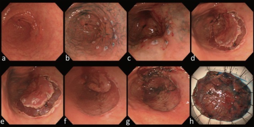 Method of endoscopic submucosal dissection. (A-B) Marking under chromoendoscoy; (C) solution injection outside marking; (D) circumferential mucosal incision; (E) solution injection beneath the lesion; (F-G) submucosal dissection; (H) retrieval of resected specimen