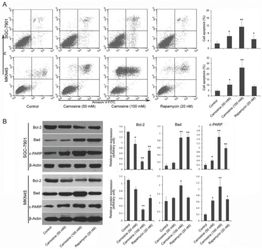 Carnosine induces apoptosis in human gastric carcinoma cells. (A) Following treatment of SGC-7901 and MKN45 cells with carnosine (50 and 100 mM) and rapamycin (20 nM) for 24 h, apoptotic cells of the two cell lines were detected by Annexin V and propidium iodide double staining. Statistical analysis of the percentages of the apoptotic cells. (B) Western blots of whole-cell extracts of treated cells were analyzed for Bcl-2, Bad and cleaved-PARP after treatment with carnosine and rapamycin for 48 h. The data shown are representatives of three experiments. *P<0.05, **P<0.01.