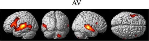 Significant brain activity for the combined AV conditions thresholded at pFDR < 0.05 corrected. Activity was present in left and right PMvi/Broca's area, left PMvs/PMd, left and right STG/S including primary and secondary auditory cortex, left MT/V5 visual motion processing area, and the right cerebellum lobule VIIb.