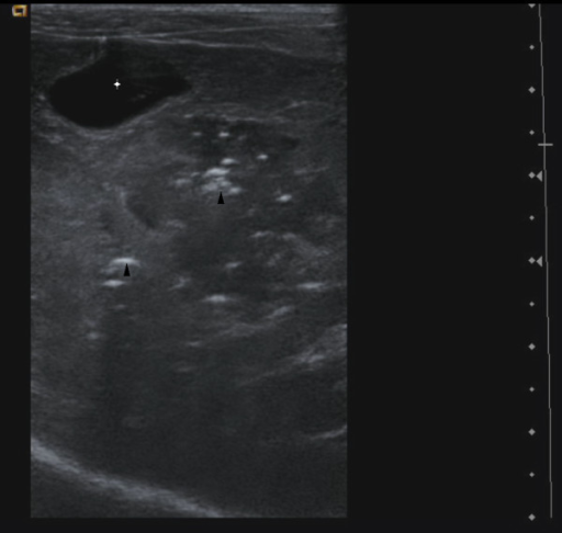 Two – days post-biopsy hepatic ultarsonographic image. Approximately the same plane is used and the same acoustic window as Figure 1, revealing echoic gas foci (black arrowheads) at the previous biopsy site. Gallbladder (white star) shows a normal appearance.