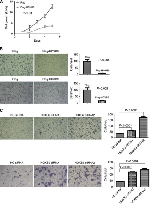 HOXB9 inhibits colon cancer cell growth, migration and invasion. (A) Cell growth assay. HOXB9 effect on colon adenocarcinoma cell growth was measured using WST-1 method in HCT116 cells stably expressing Flag-HOXB9 or Flag. (B) Gain-of-function experiments. Upper panels: HOXB9 effect on colon adenocarcinoma cell migration was determined in a Transwell assay by comparing HCT116 cells stably expressing Flag-HOXB9 or Flag (the left two panels), with quantification on the right panel. Lower panels: HOXB9 effect on colon adenocarcinoma cell invasion in Matrigel was examined using HCT116 cells stably expressing Flag-HOXB9 or Flag (the left two panels). The cell invasion assay was quantified and displayed on the right panel. (C) Loss-of-function experiments. Upper panels: the requirement of HOXB9 in colon adenocarcinoma cell migration was examined in HCT116 cells transiently transfected with two HOXB9 siRNAs separately, controlled by scramble siRNA (the left three panels). The migratory cells were quantified as shown on the right panel. Lower panels: the effect of HOXB9 on colon adenocarcinoma cell invasion was examined in HCT116 cells transiently transfected with two HOXB9 siRNAs separately, controlled by scramble siRNA (the left three panels). Quantification of cell invasion was shown on the right panel. Student's t-tests were applied for analysing the difference between the two cell populations in growth, migration and invasion assays, and in each case the difference was regarded as significant with p⩽0.05.
