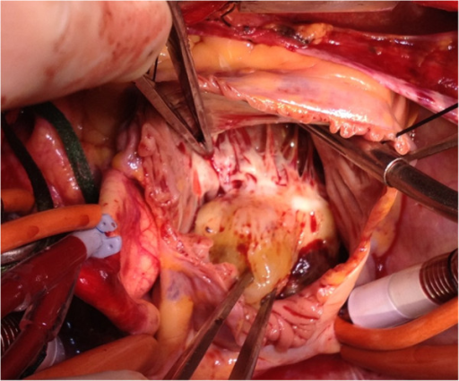 Per-operative vision of the myxoma in close relationship with the tricuspid valve.