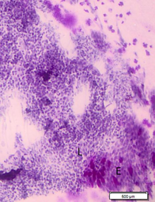 An impression cytology demonstrating an abrupt transition from the adjacent normal bulbar conjunctiva with goblet cells (E) and a fairly monomorphic population of lymphoid cells (L), almost equal to or slightly larger than a mature lymphocyte, with a scanty cytoplasm, predominantly condensed chromatin and inconspicuous nucleoli over the lesion surface (HE. Original magnification. ×200).