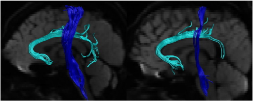 Tractography reconstructions from two individuals. Tractography reconstructions from two individual (left side shown). Light blue — subgenual cingulum. Blue — corticospinal tract. Tracts overlain on mean of diffusion weighted images. The CST was split into inferior and superior segments at the level of the lateral sulcus.