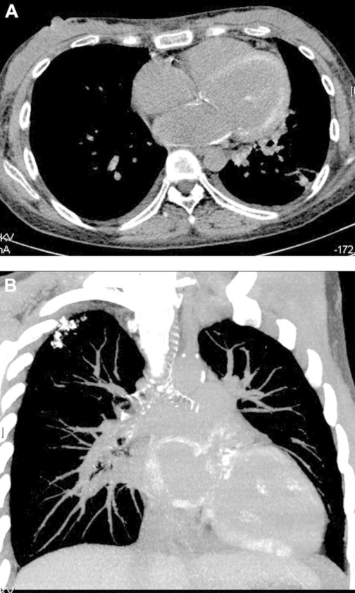 CT images showing left atrium and ventricle dilatation (A) and myocardium, lung and coronary arteries calcification (B).