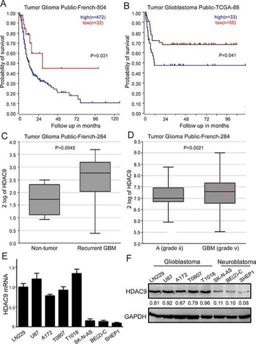 High HDAC9 expression is a prognostic indicator of poor survival in glioblastoma patients(A) Kaplan–Meier analysis of progression-free survival for the Frence database with the log rank test P value indicated. (B) Kaplan–Meier analysis of progression-free survival for the TCGA database with the log rank test P value was indicated. (C) Box plot of HDAC9 expression levels from non-tumor and recurrent GBM patients was shown. (D) Box plot of HDAC9 expression levels in the stage 2 and 5 tumors. (E) mRNA level of HDAC9 in glioblastoma cell lines, primary GBM cells and neuroblastoma cell lines by quantitative real time-PCR was analyzed. Values are shown as the mean ± SD (F) Western blot assay of HDAC9 expression in GBM cell lines, primary GBM cells and neuroblastoma cell lines was performed; representative blots are shown. Values are shown as the mean ± SD, *p < 0.05, **p < 0.01.