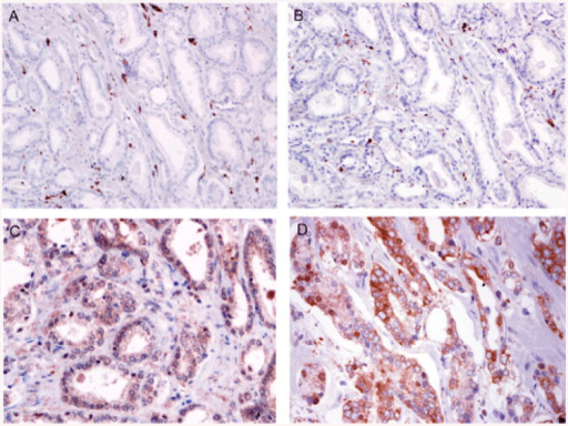 Prostate immunohistochemistry with tumor associated macrophages. (A) CD68 positive cells are demonstrated in the stroma adjacent to the prostate cancer epithelium (20×). (B) CD206 (mannose receptor) positive cells are shown in the stroma adjacent to the prostate cancer epithelium (20×). (C) Prostate cancer immunostained with anti-CCL2 (CCL2) showing epithelial and stromal cell expression (40×). (D) Prostate cancer immunostained showing nuclear and cytoplasmic NF-κB p65 (40×).