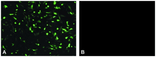 (A) Stable transfection of the pEGFP-hIL-2 vector into AF-MSCs (magnification, ×50). (B) Untransfected AF-MSCs (magnification, ×50). pEGFP-hIL-2, enhanced green fluorescent protein-human interleukin-2; AF-MSCs, amniotic fluid mesenchymal stem cells.